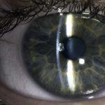 Close-up on a human eye
