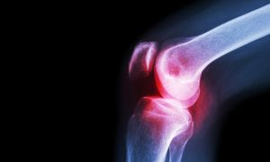 A knee joint with osteoarthritis